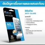 - ฟิลม์กันรอย Asus Zenfone 3 Ultra ZU680KL แบบด้าน